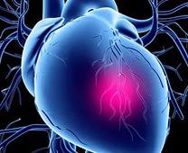 Причины, диагностика и лечение стенокардии